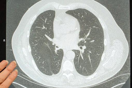 CU CT Scan