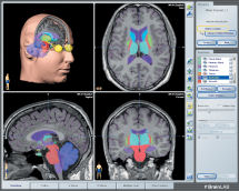 BrainLab software with four brain images