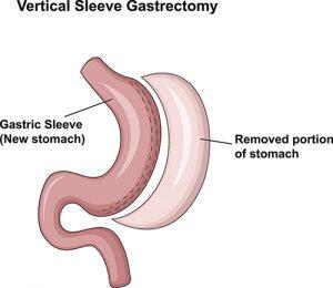 Cartoon illustration of Vertical Sleeve Gastrectomy (VSG)