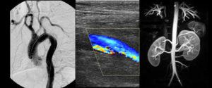 Lahey vascular imaging