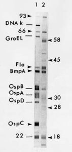 A Western blot test, used to discern Borrelia burgdorferi infection from cross-reacting antibodies. (Source: www.CDC.gov)